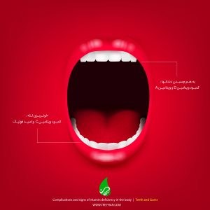 Signs of vitamin deficiency in the body (teeth and gums)